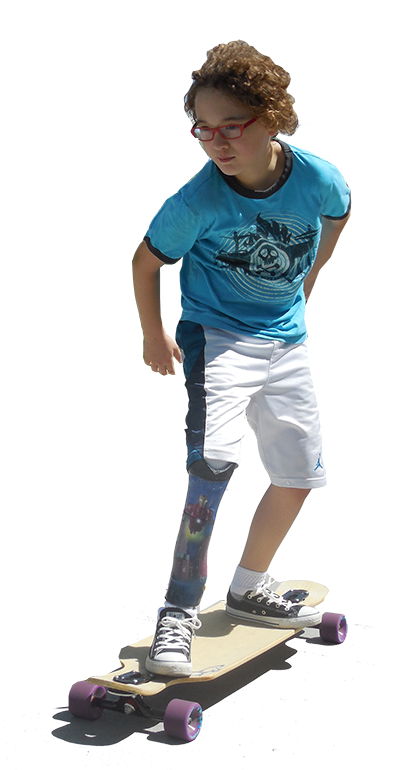 skateboarder with prosthetic leg
