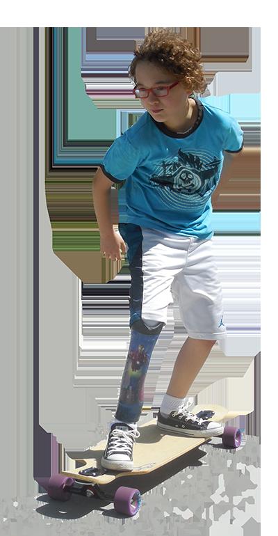 skateboarder with prosthetic leg