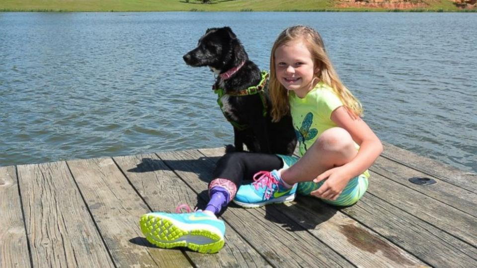 girl and dog with prosthetic limbs